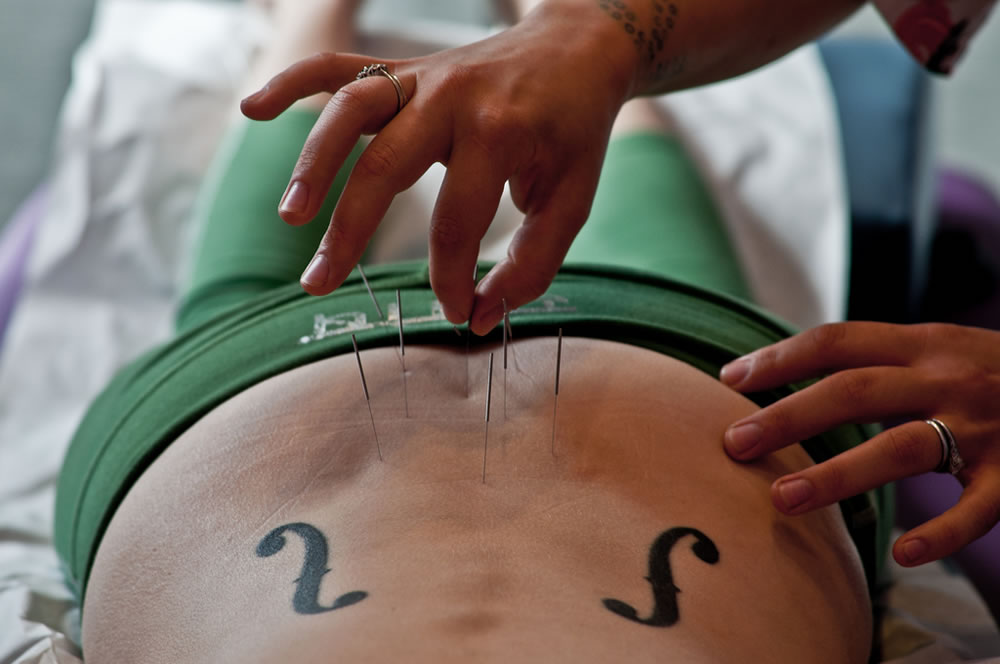 how to become an acupuncturist in massachusetts