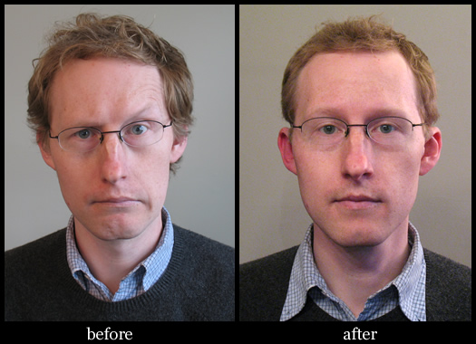 barber poll byond before after
