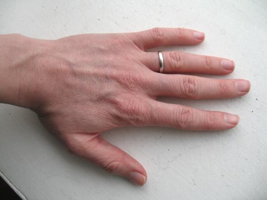 dry hands fix hand